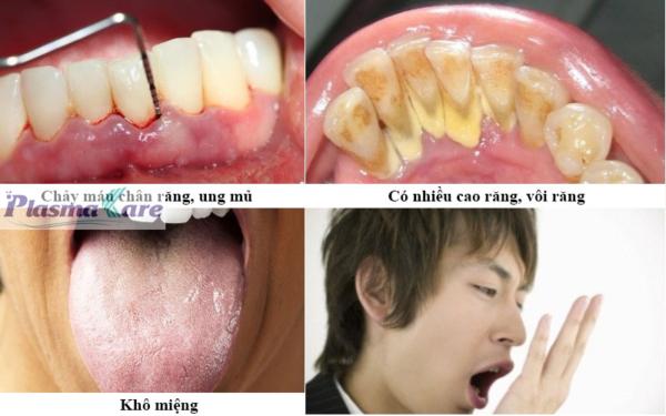 Dieu-tri-hoi-mieng-bang-nuoc-suc-mieng-nano-bac-plasma-kare-khang-khuan_800_500