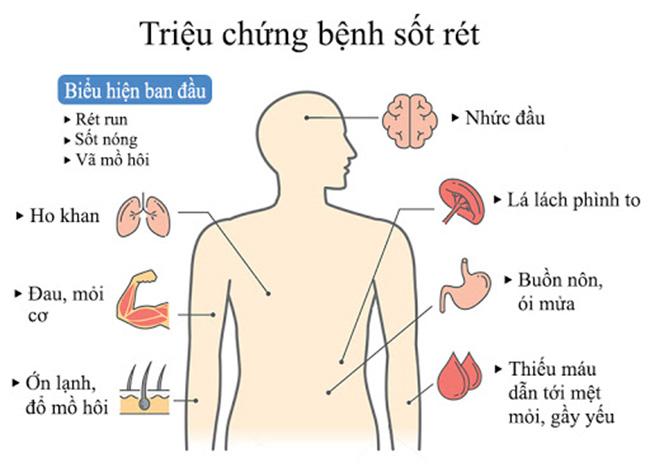 benh-sot-ret_13