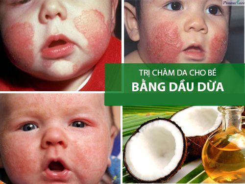 cham-soc-tre-bi-cham-sua-nhung-dieu-me-can-luu-y-ngay-10