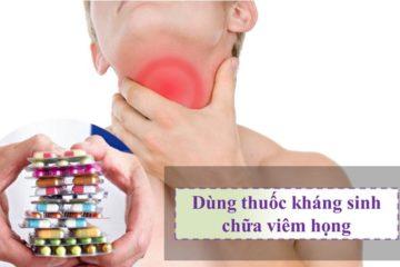 Điều trị viêm họng có cần dùng kháng sinh không?