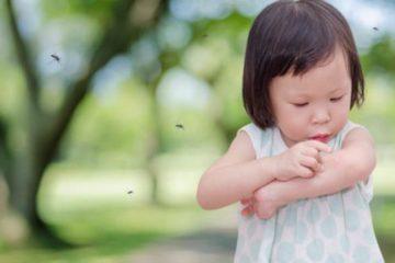 Review chi tiết 6 thuốc bôi muỗi đốt cho bé an toàn, hiệu quả nhất hiện nay