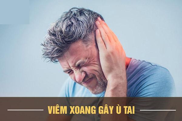 3-cach-khac-phuc-u-tai-do-viem-xoang-cuc-don-gian-3