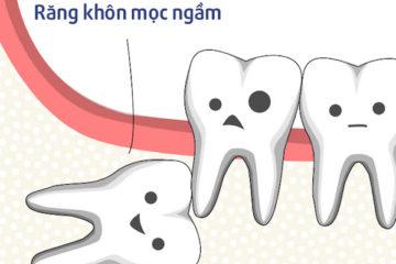 Không mọc răng khôn có nguy hiểm không?