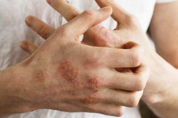 Viêm da cơ địa: Nguyên nhân, cách nhận biết và điều trị chi tiết nhất