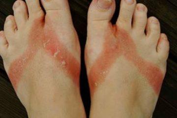 Viêm da tiếp xúc dị ứng: Nguyên nhân, triệu chứng, cách điều trị hiệu quả