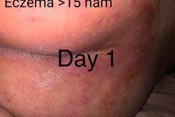 eczema-viem-da-co-dia-15-nam-da-phuc-hoi-80-chi-sau-1-thang-nho-bi-kip-nay-3