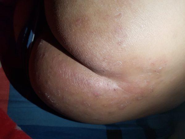 eczema-viem-da-co-dia-15-nam-da-phuc-hoi-80-chi-sau-1-thang-nho-bi-kip-nay-1