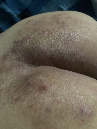 eczema-viem-da-co-dia-15-nam-da-phuc-hoi-80-chi-sau-1-thang-nho-bi-kip-nay-2