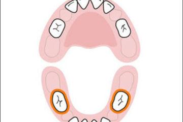 Những lưu ý và cách chăm sóc bé mọc răng hàm, mẹ cần biết
